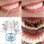 Teeth Whitening Solution. Teeth Cleaning & Whitening Liquid