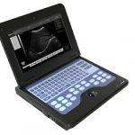 Portable Ultrasound Scan Machine