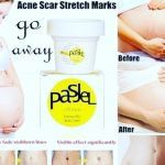 Pasjel Stretch Marks Cream
