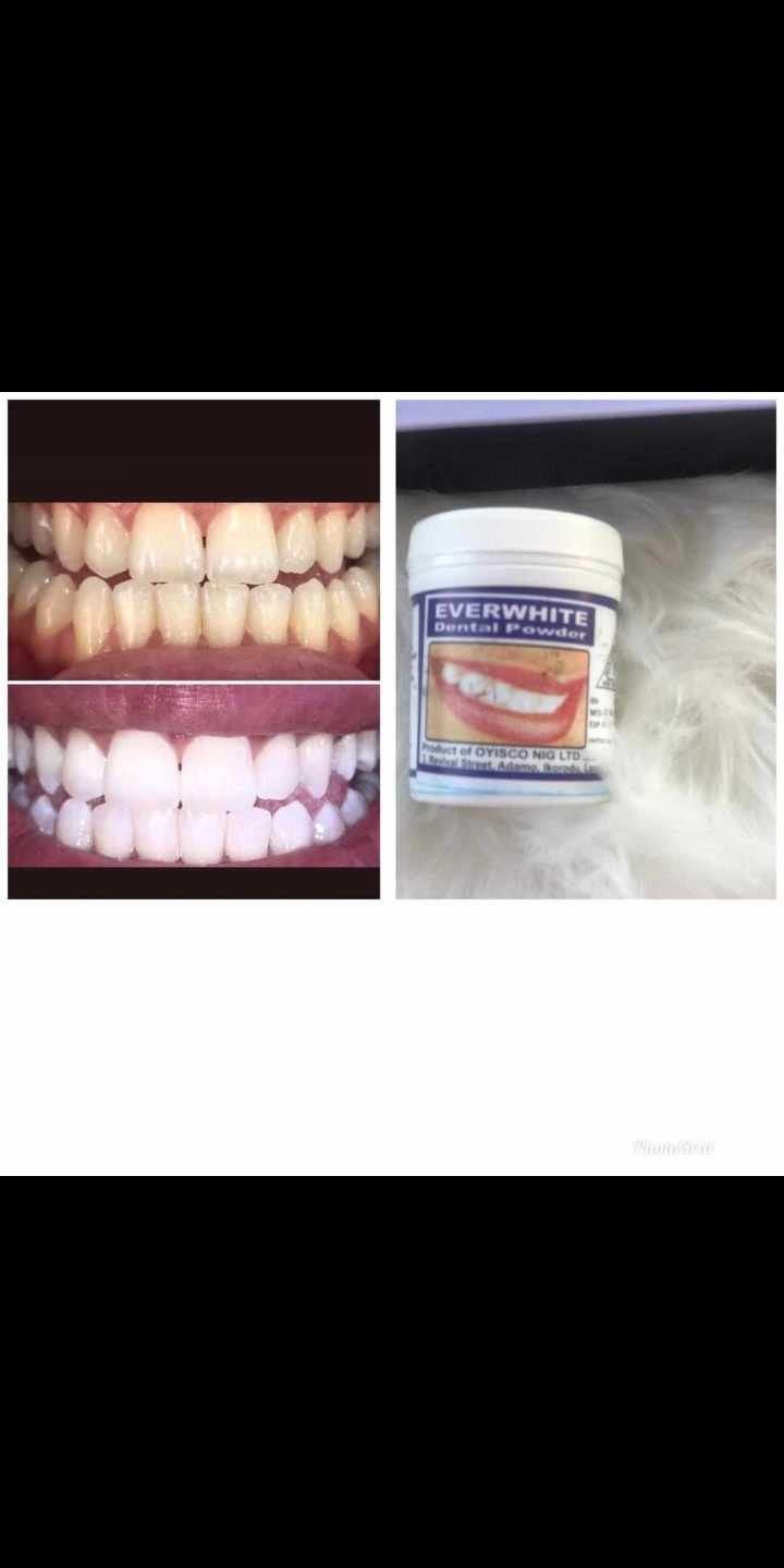 Everwhite dental powder