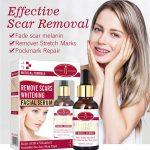 Effective scar Remover serum, face & body